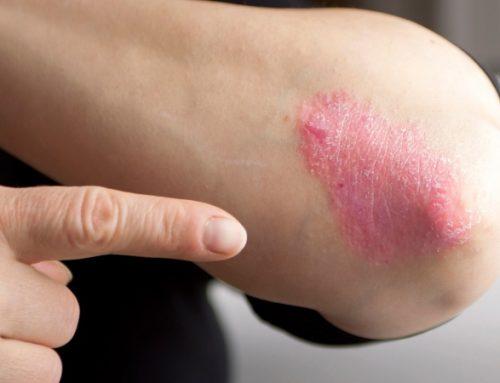 Psoríase pode aumentar risco de infeção por covid-19