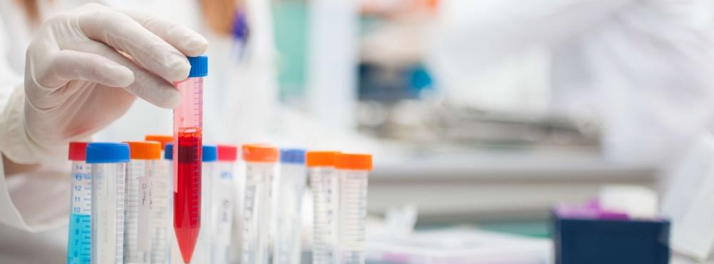 Músculo artificial criado a partir de células do sangue e pele