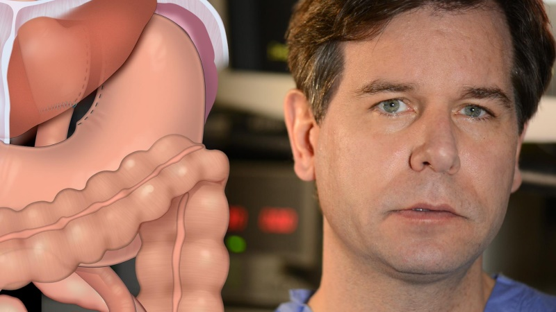 Weight loss surgery linked to gastrointestinal complaints