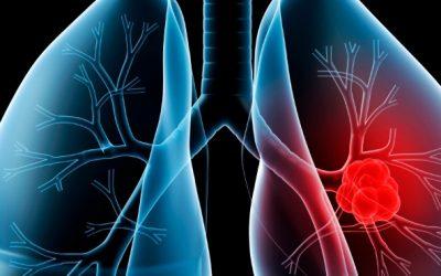 FDA aprova pembrolizumab em monoterapia para doentes com CPCP metastático