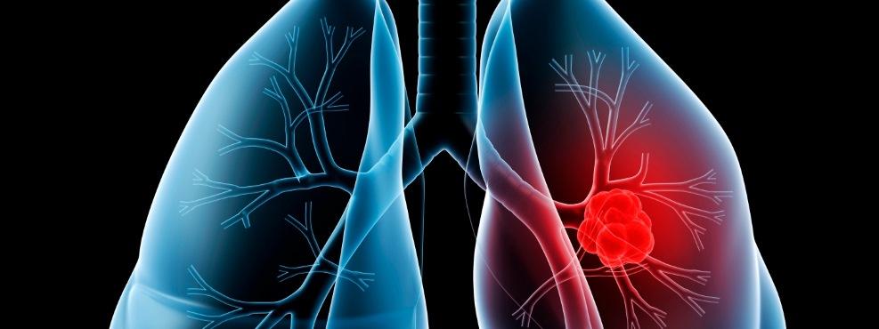 Mais de metade dos portugueses têm pelo menos uma doença crónica
