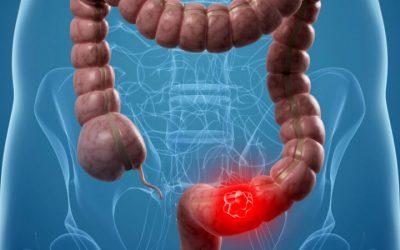 Combinação de medicamentos mais eficaz no tratamento do cancro colorretal com metástases