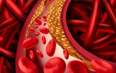 Assinala-se hoje o Dia Mundial do Colesterol Hereditário