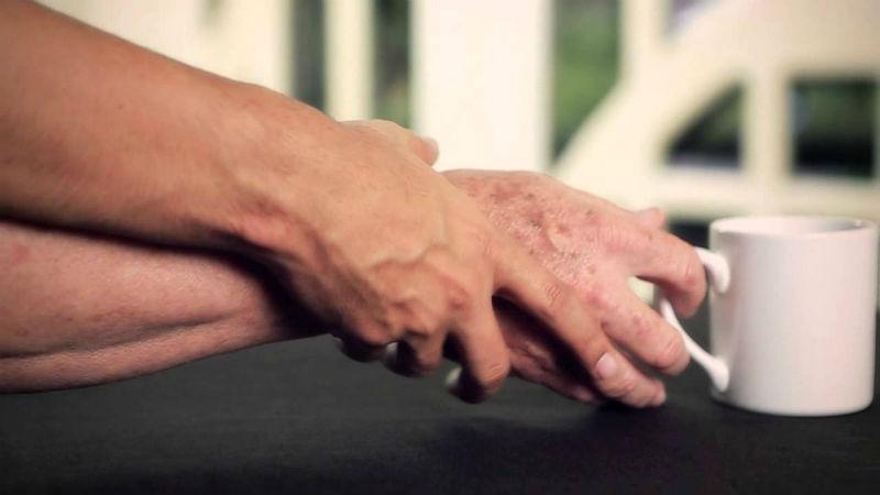 Estudo revela que risco de Parkinson pode ser maior em indivíduos com hepatite