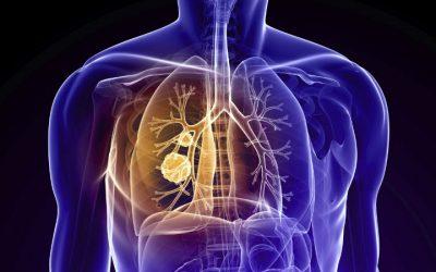 Associação RESPIRA realiza II Fórum sobre Reabilitação Respiratória