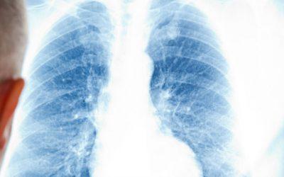 A longa batalha contra a pneumonia: apenas 30% dos idosos estão vacinados