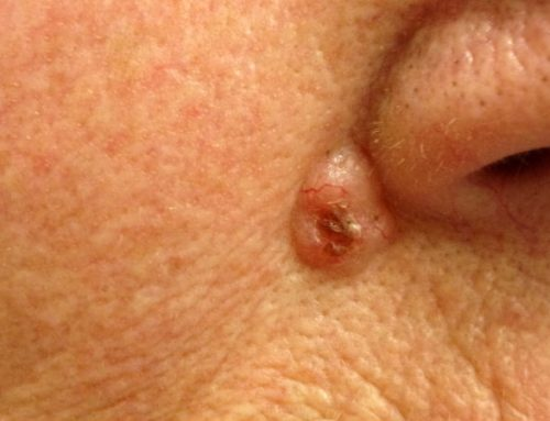 CarcinomaBasocelular: aprenda a identificar