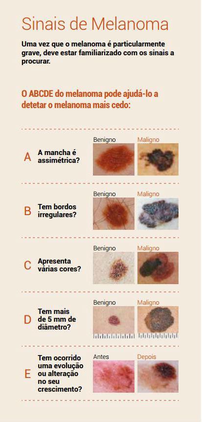 sinais_melanoma