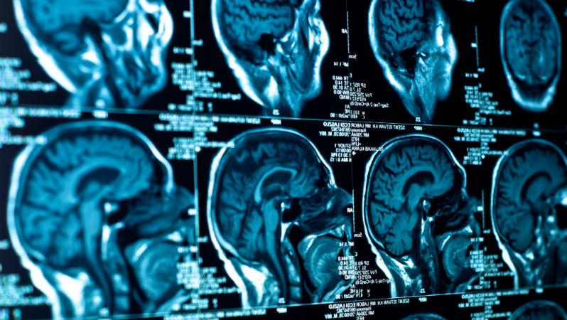 O que há de novo na gestão dos sintomas da Esclerose Múltipla