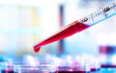 Investigadora defende que teste sanguíneo que deteta células tumorais seja rotina
