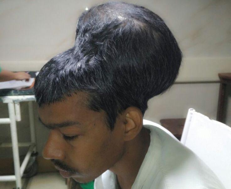 """Índia: Cirurgiões removem o """"maior tumor cerebral de sempre"""""""