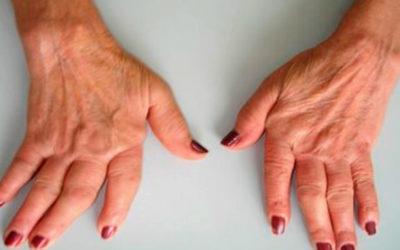 Infarmed autoriza novo fármaco para artrite reumatoide em meio hospitalar já a partir de abril