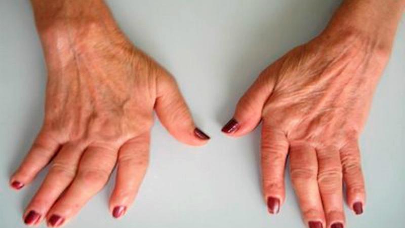 Sociedade Portuguesa de Reumatologia relembra que doenças reumáticas não são exclusivas dos idosos