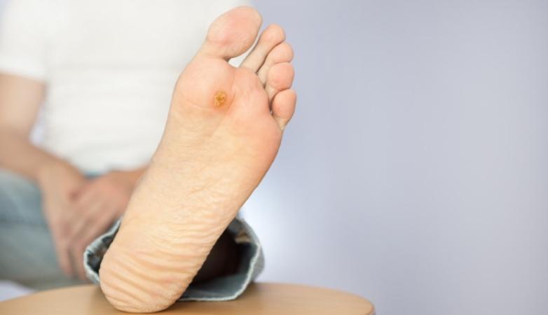 7% dos diabéticos da Região Norte desenvolveram úlcera de pé diabético