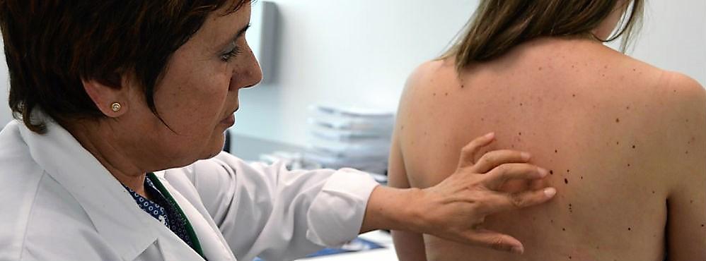Rastreios de cancros de pele em todo o país assinalam hoje Dia do Euromelanoma