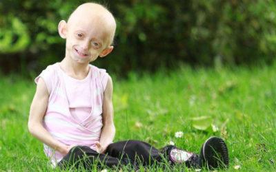 Estudo revela tratamento que prolonga a vida das crianças com progeria
