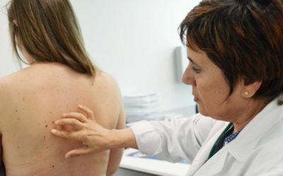 Rastreio nacional aos cancros de pele detetou 101 casos em 2017