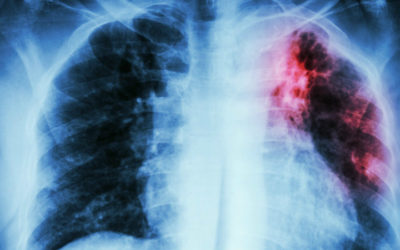 Europa disseminou tuberculose mas doença evoluiu consoante regiões, diz estudo