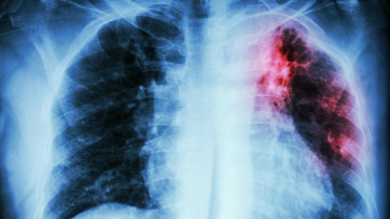 Nano4 Global recebe 1,4 milhões de financiamento para desenvolver teste de diagnóstico da tuberculose