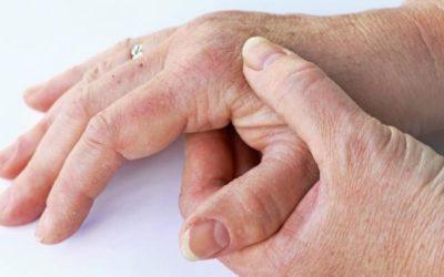Citrato de tofacitinib aprovado na União Europeia para o tratamento da Artrite Psoriática ativa