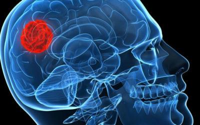 Pembrolizumab em monoterapia atingiu o objetivo primário no tratamento de doentes com cancro da cabeça e pescoço