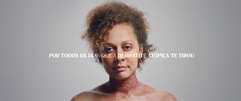 Celebra-se hoje pela primeira vez o Dia Mundial da Dermatite Atópica [vídeo]