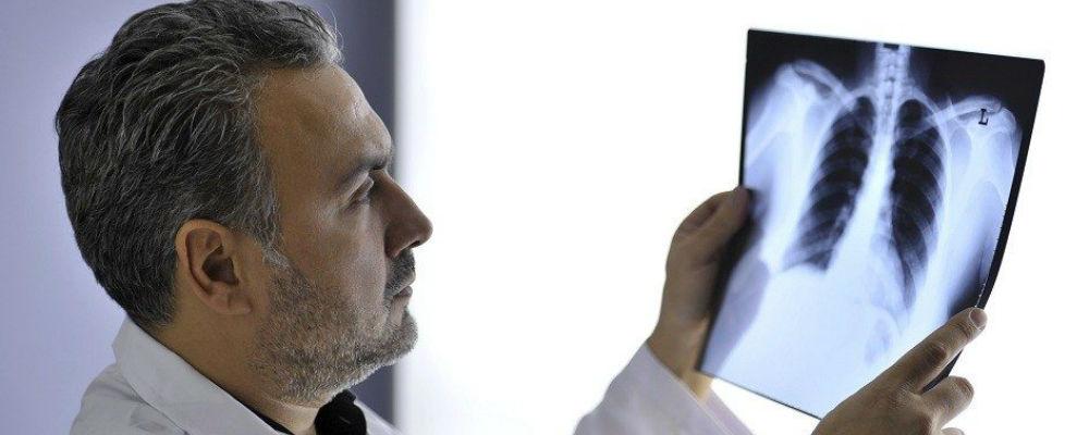 Cancro do pulmão é o que tem maior incidência e é o mais mortal