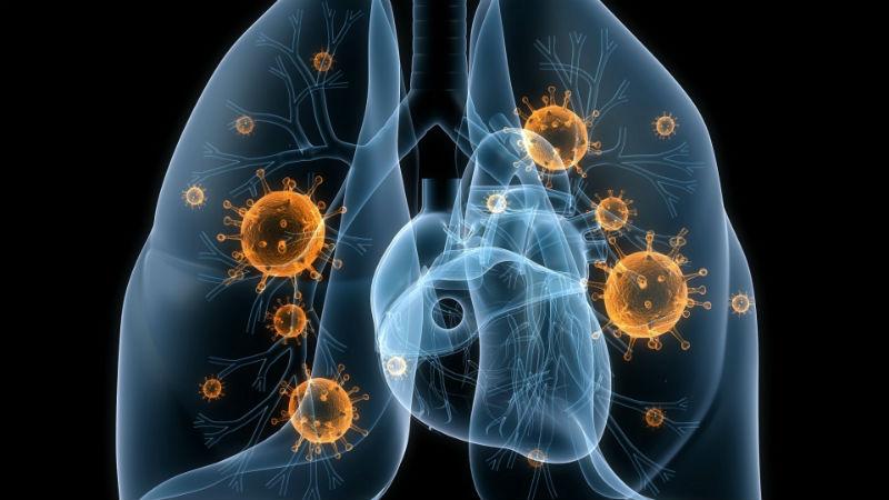 Ceftolozano/tazobactam cumpriu os critérios de não-inferioridade em comparação com meropenem no tratamento da pneumonia bacteriana