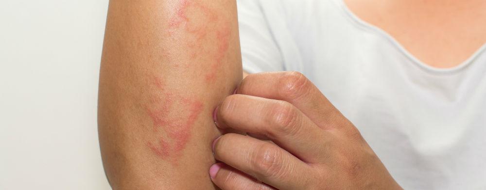 Estudo revela que mais de 20% das pessoas com dermatite atópica não têm uma visão otimista sobre a vida