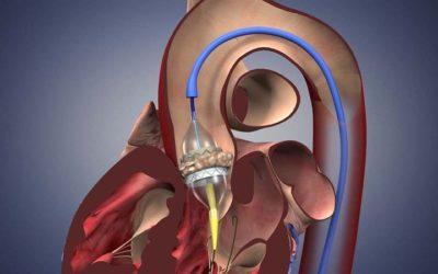 APIC recomenda tratamento percutâneo a válvula aórtica em todos os doentes com estenose grave