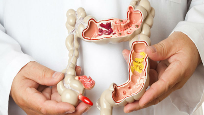 Cancro do intestino mata 11 portugueses por dia