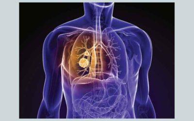 Opinião Positiva do Comité de Medicamentos de Uso Humano (CHMP) para tratamento de doentes com Cancro do Pulmão de Não Pequenas Células Avançado ALK-Positivo Previamente Tratados
