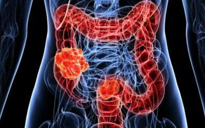 Incidência de cancro colorretal está a aumentar em adultos jovens
