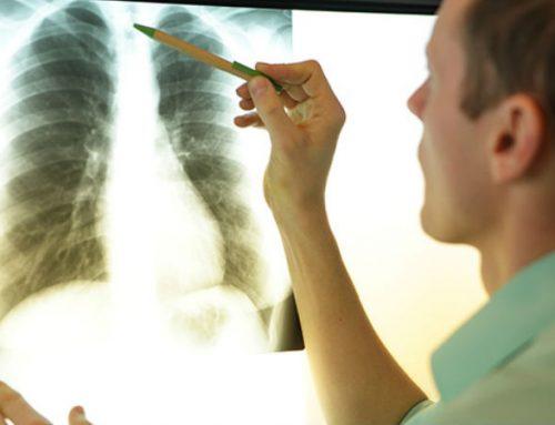 .fusion-header-wrapper i.iconlock, .fusion-footer i.iconlock {display:none !important;}              Incidência de cancro do pulmão em não fumadores já ronda os 12%