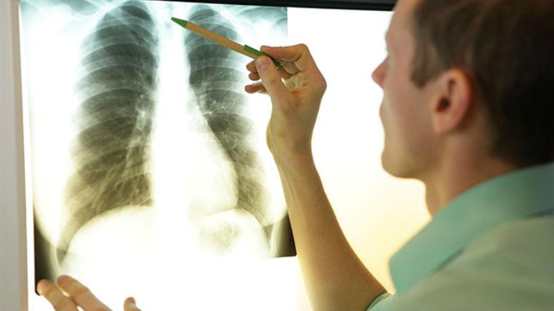 Inibidores de CDK4/6 podem inflamar os pulmões, alerta a FDA