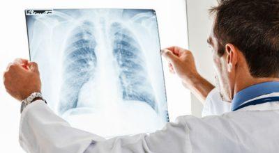 Madeira tem o dobro da taxa de mortalidade nas doenças respiratórias do continente