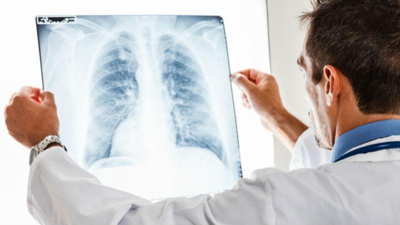 Inteligência artificial promete diagnosticar cancro com mais precisão que radiologistas