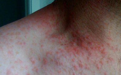 900 milhões de pessoas têm doenças de pele