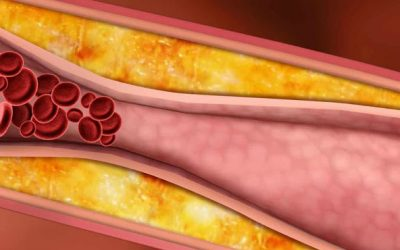 """Colesterol: """"Têm tentado diabolizar as estatinas mas a relação risco-benefício é muito favorável"""""""