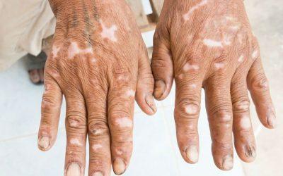 Doentes com esclerodermia têm de consultar cinco médicos até ao diagnóstico