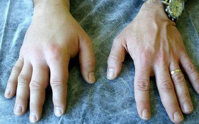 Estudo HELP: Lanadelumab eficaz na redução de ataques de angioedema hereditário