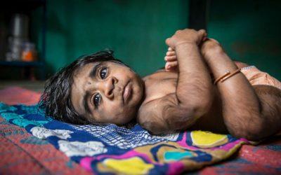 Omeprazol contaminado deixa 16 bebés com Síndrome de Lobisomem