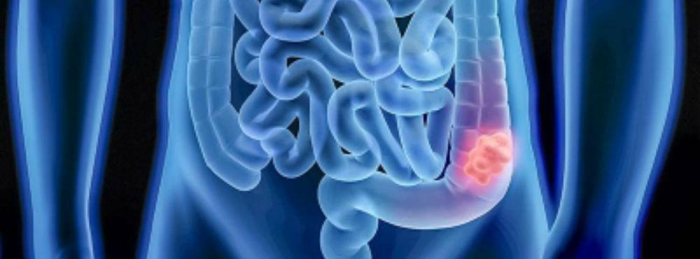 Aumenta incidência de cancro colorretal em adultos jovens