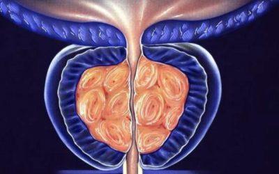 Avaliação de células tumorais circulantes e PSA permitem 90% de precisão do diagnóstico