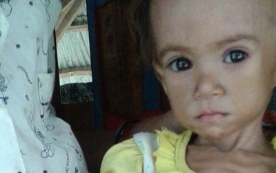 Timor-Leste é o país da Ásia com mais problemas de nutrição e fome