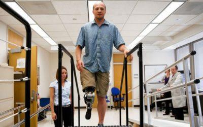 Investigadores criam prótese que devolve autonomia a amputados
