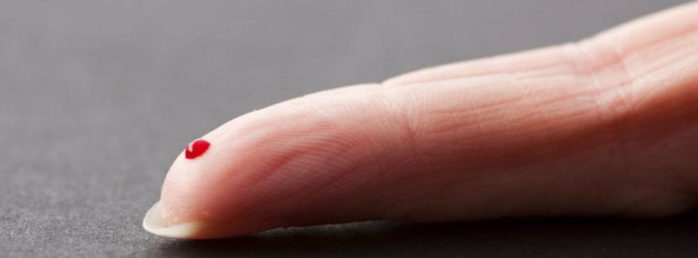 Novo teste de sangue deteta 13 tipos de cancro com uma eficácia de 99%