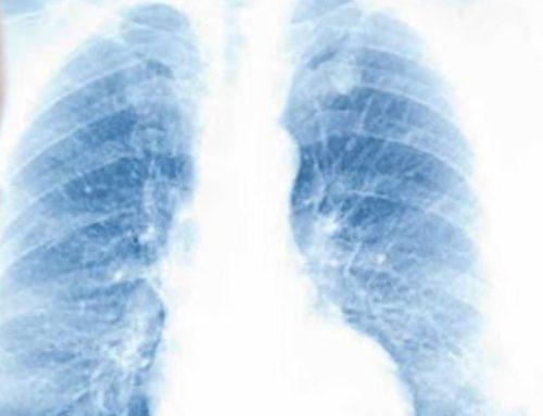 Doentes com DPOC e fumadores têm risco aumentado de desenvolver casos graves