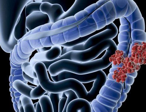 CE aprova Pembrolizumab como tratamento em 1ª linha do cancro colorretal metastático