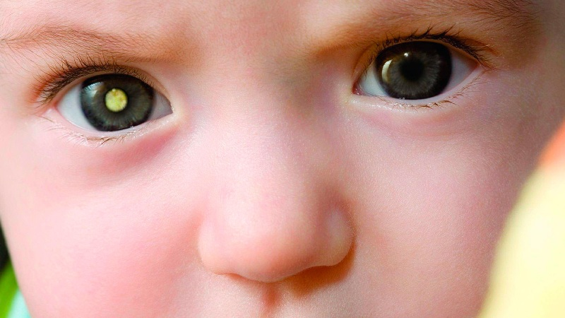 doenças oculares raras